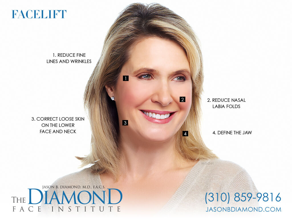 Infographic - Facelift | The Diamond Face Institute