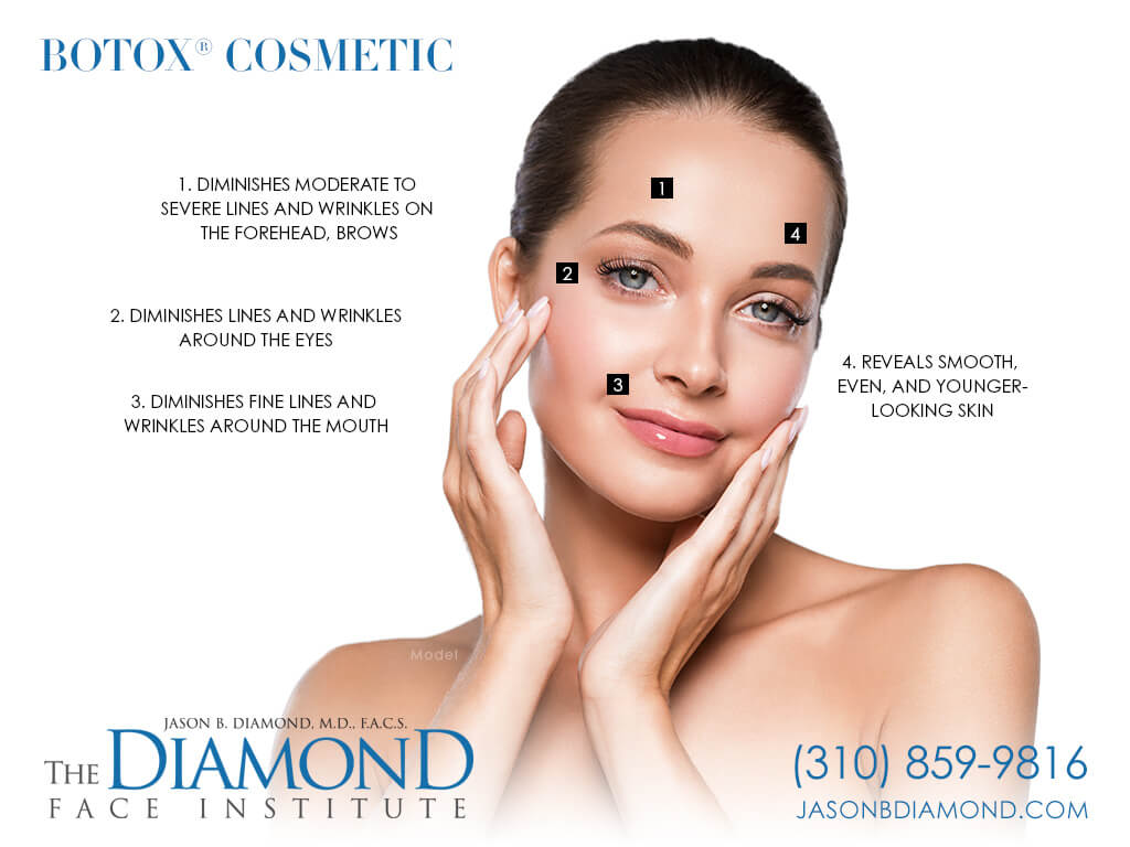 Infographic BOTOX® Cosmetic | The Diamond Face Institute