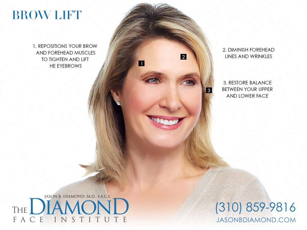 Infographic: Brow Lift | The Diamond Face Institute