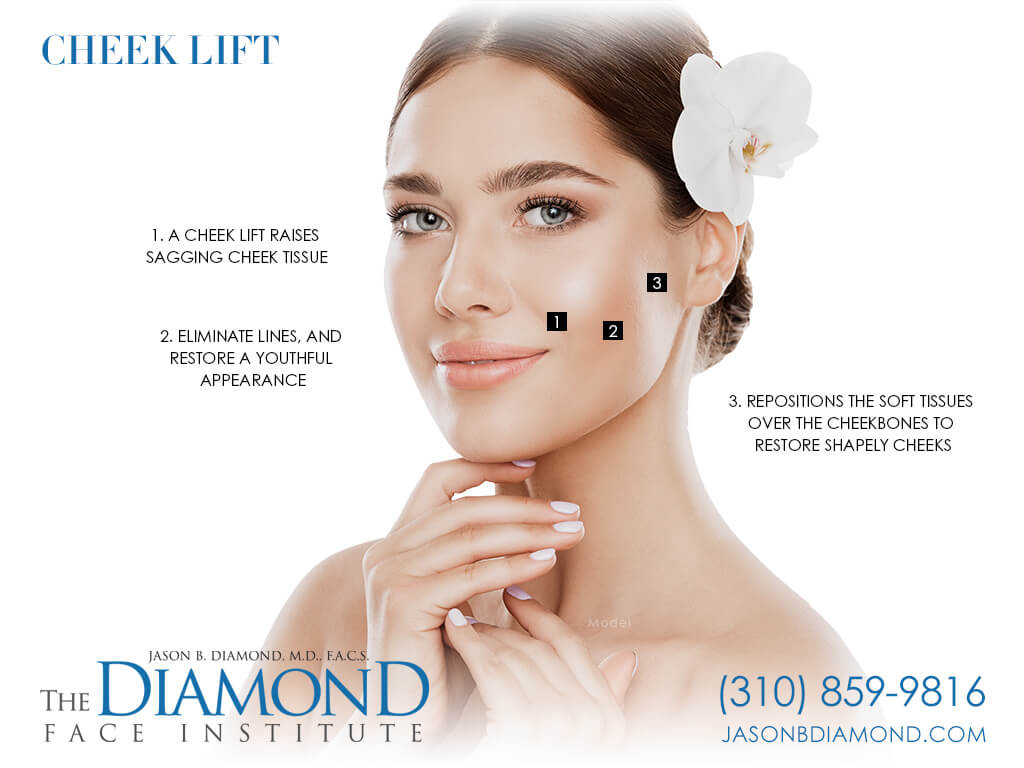 Infographic Cheek Lift | The Diamond Face Institute