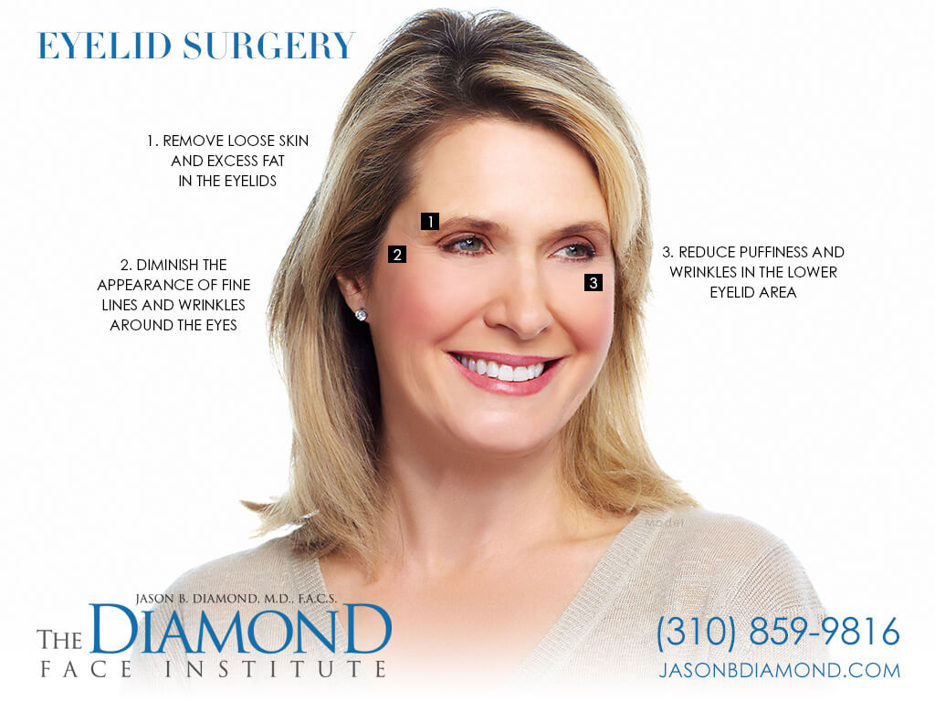 Infographic: Eyelid Surgery | The Diamond Face Institute