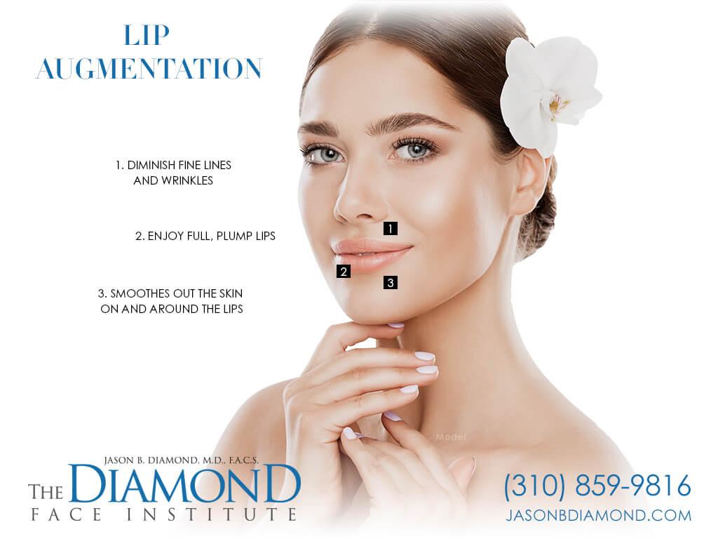 Infographic Lip Augmentation   The Diamond Face Institute