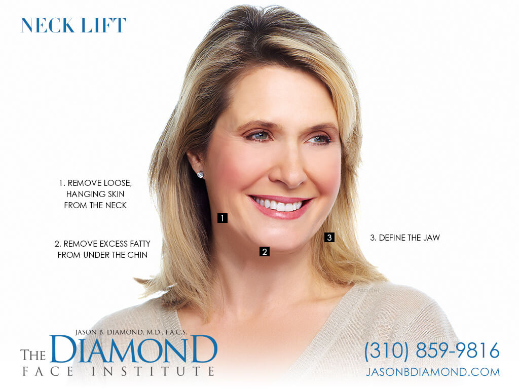 Infographic: Neck Lift | The Diamond Face Institute