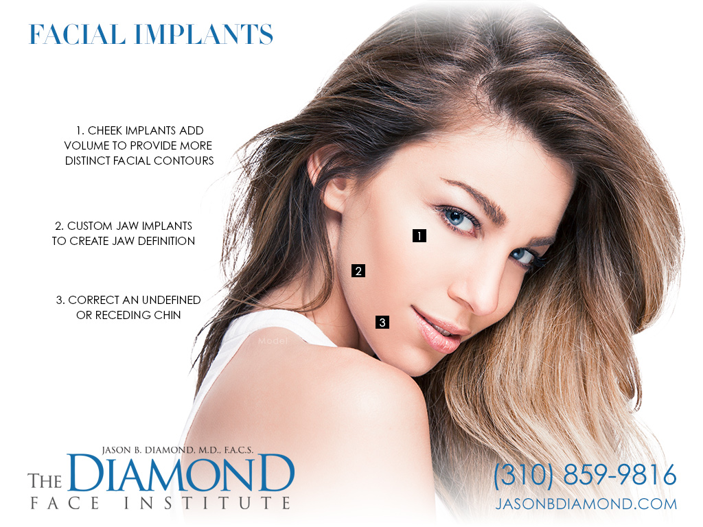 Infographic Facial Implants | The Diamond Face Institute