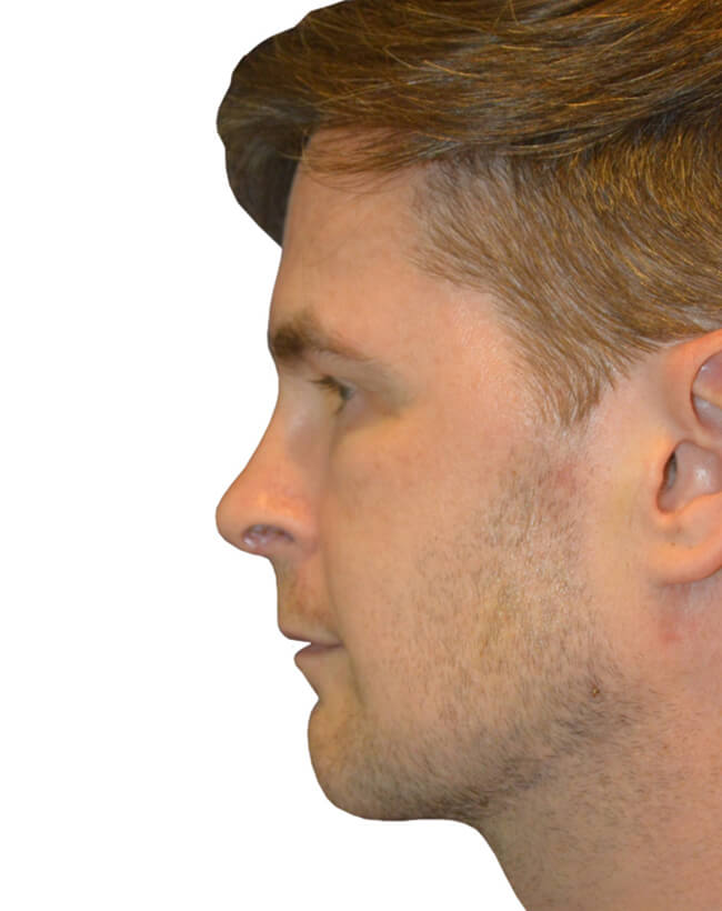 Patient After Chin Augmentation