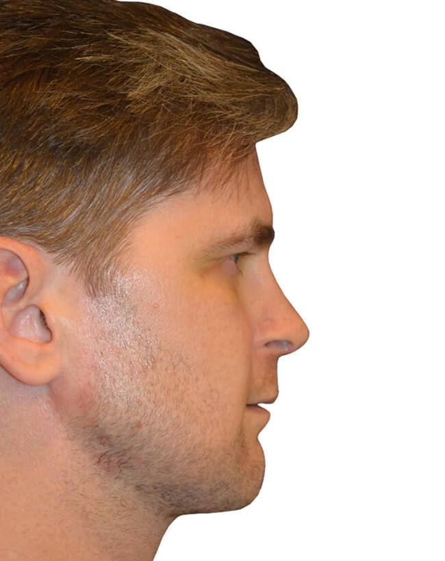 Patient After Chin Augmentation - Right Profile