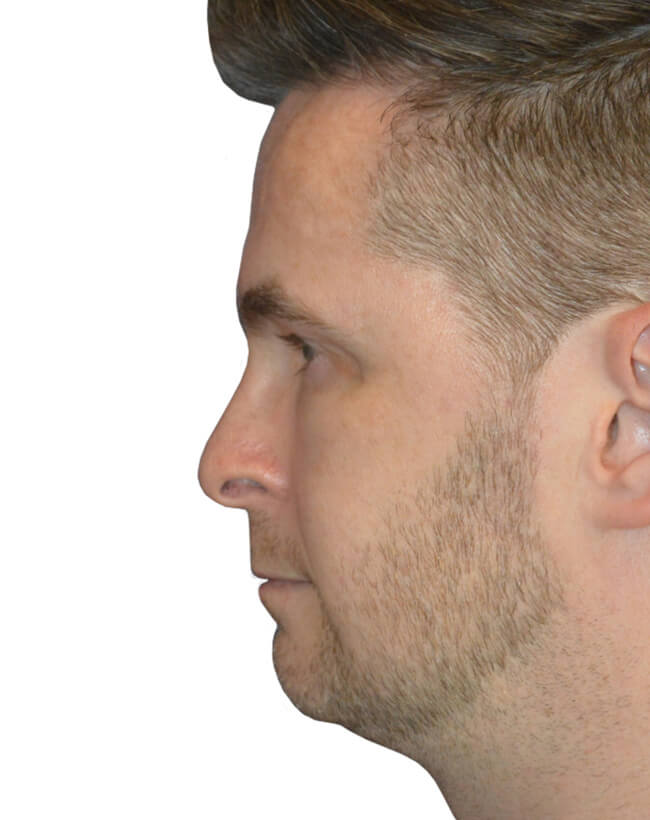 Patient Before Chin Augmentation