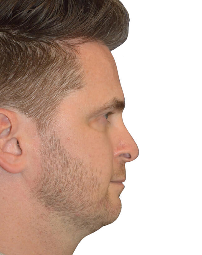 Patient Before Chin Augmentation - Right Profile
