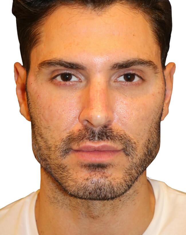 Diamond Facial Sculpting® of the Cheek Bones - After