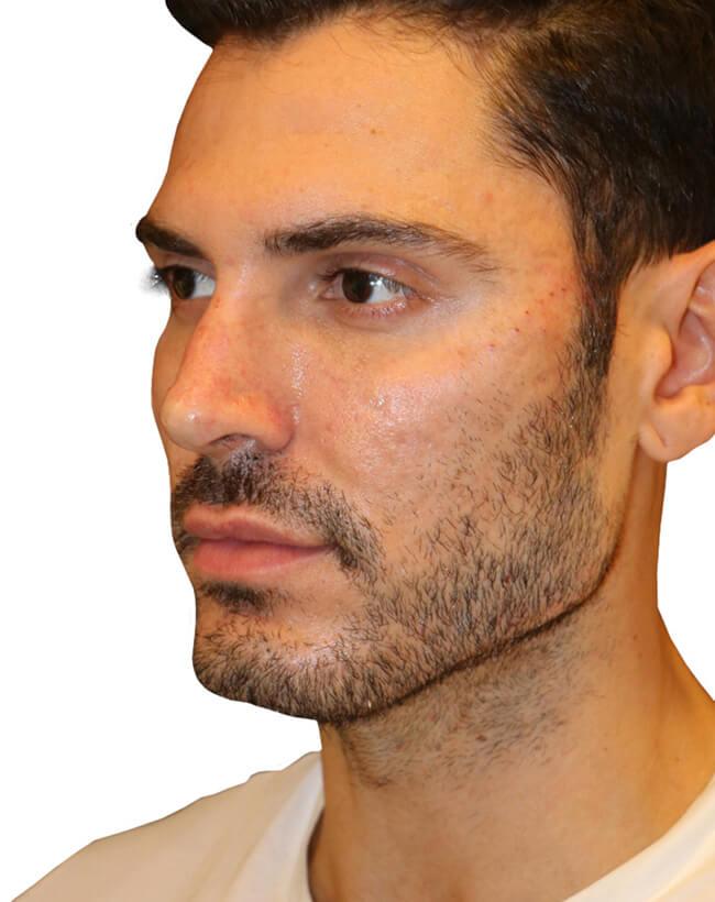 Diamond Facial Sculpting® of the Cheek Bones - After Profile