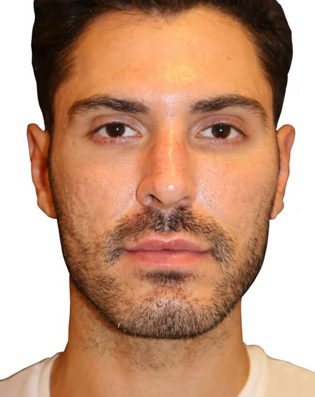 Diamond Facial Sculpting® of the Cheek Bones - Before