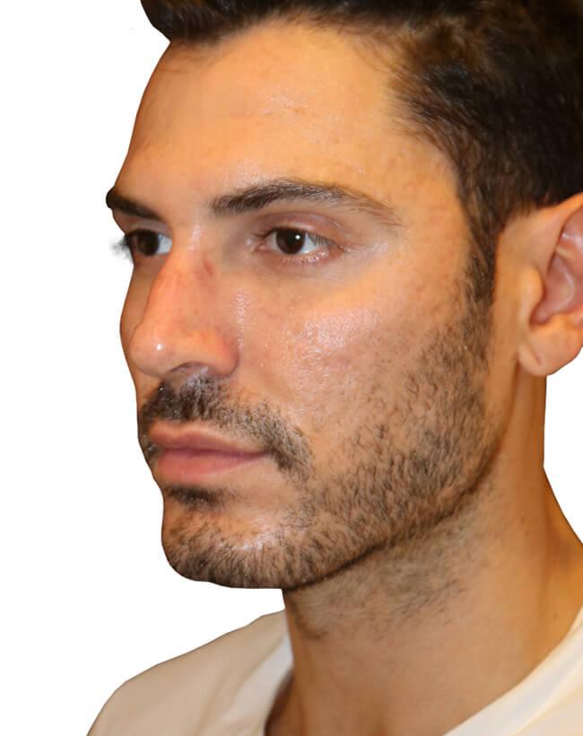 Diamond Facial Sculpting® of the Cheek Bones - Before Profile
